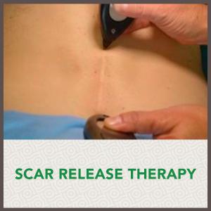 scar-image